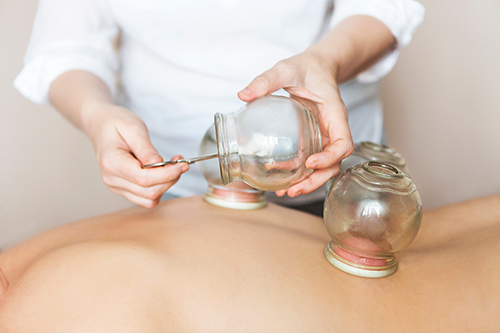 Cupping Therapy: An All-Encompassing Therapy For The Body and Mind