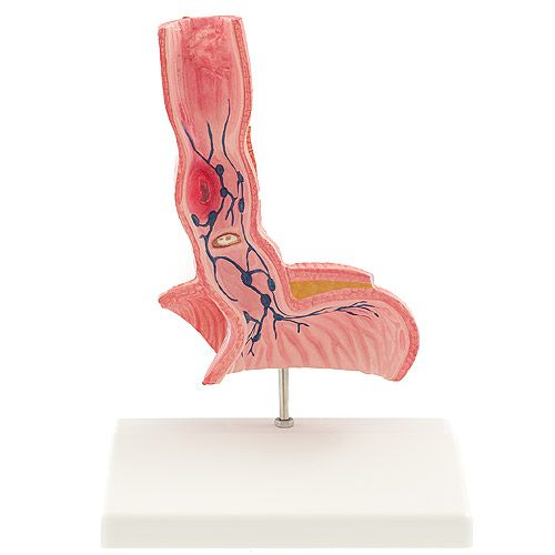 model of esophagus with diseases sports supports