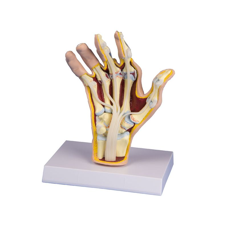 rheumatoid arthritis hand model sports supports mobility healthcare products. Black Bedroom Furniture Sets. Home Design Ideas