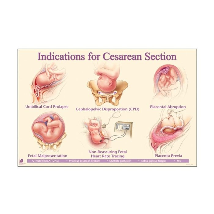 Cesarean section incision types