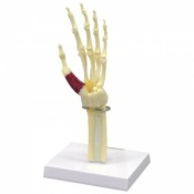 Carpal Tunnel Syndrome Model