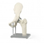 Hip Joint Model with Resurfacing Implant