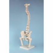 Prolapsed Vertebral Column Model with Femoral Stumps