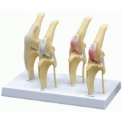 4-Stage Osteoarthritis Knee Model