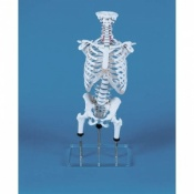 Malposition Vertebral Column Model with Thoracic Cage