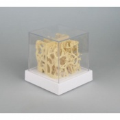 Osteoporosis Bone Structure Comparison Model