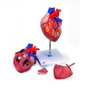 Heart With Bypass 2 Times Life Size 4 Part
