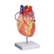 Enlarged Heart Bypass Model