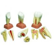 Upper Incisor 2 Part