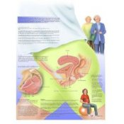 Female Urinary Incontinence Chart