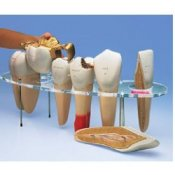 Dental Morphology Series 7 Part 10 Times Life Size - French