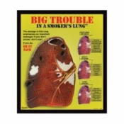 Big Trouble in a Smokers Lung 3D Display Tobacco Educational Aid