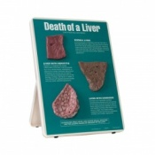 Death of a Liver Easel Display Alcohol Educational Aid