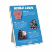 Death of a Lung Easel Display Tobacco Educational Aid