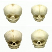 Foetal Skull Models Set of Four 34 - 40 1/2 Weeks