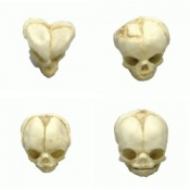 Foetal Skull Models Set of Four 13 - 21 1/2 Weeks