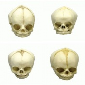 Foetal Skull Models Set of Four 29 - 32 Weeks