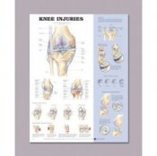 Anatomical Chart for Knee Injuries