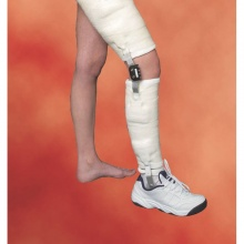 Masterhinge Locking Knee Cast Hinge
