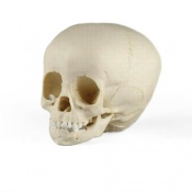 Paediatric Skull 1 1/2 Year Old