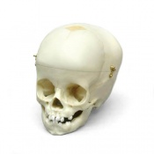 Paediatric Skull 1 Year Old