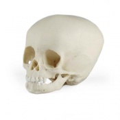 Paediatric Skull 15 Months Old