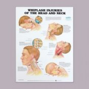 Anatomical Chart for Whiplash Injuries of Head and Neck
