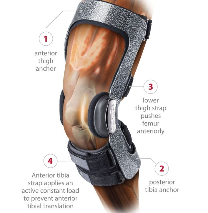 The Donjoy Armor Brace provides ACL relief and knee support with a Four Points of Leverage design