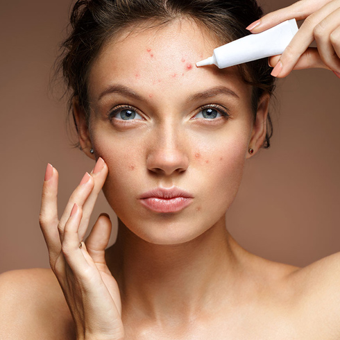 Causes, effects, and how you can prevent dreaded acne
