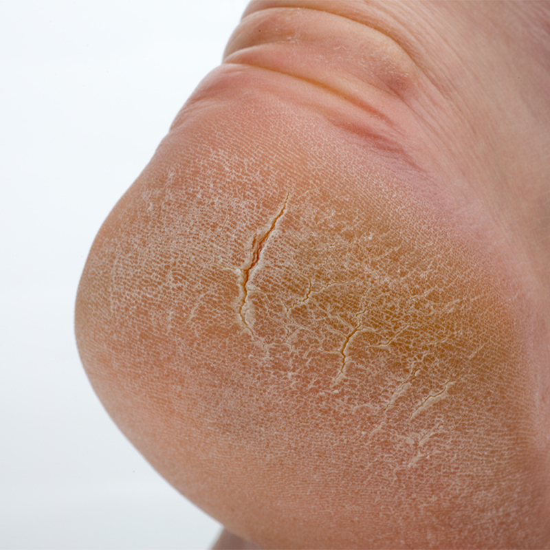 Cracked Heels: Treatment at Home