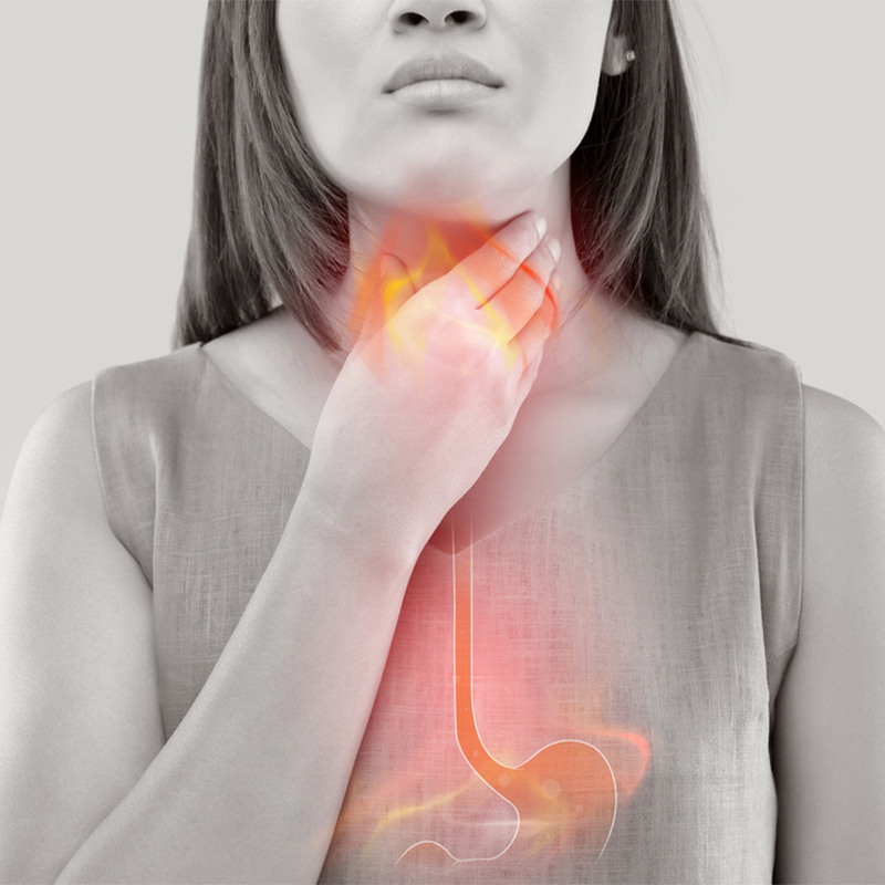 How to Prevent Acid Reflux at Night