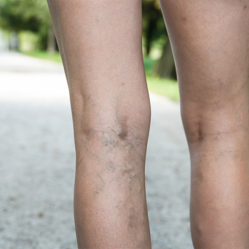 How to Prevent Varicose Veins