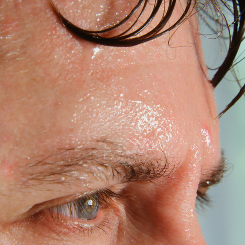 How to Stop Face Sweating