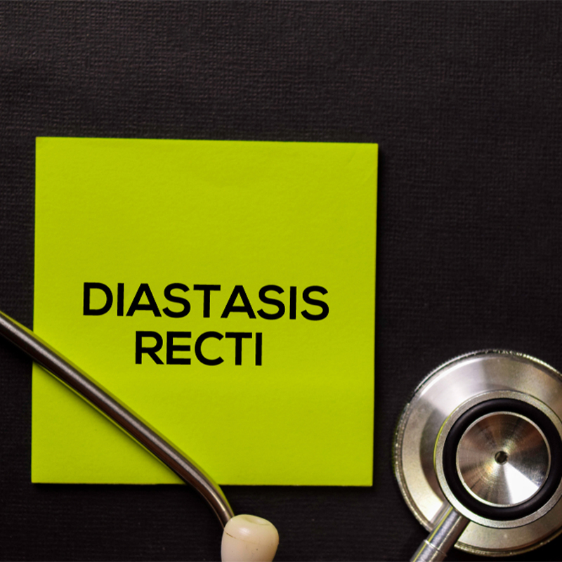 What Is Diastasis Recti?