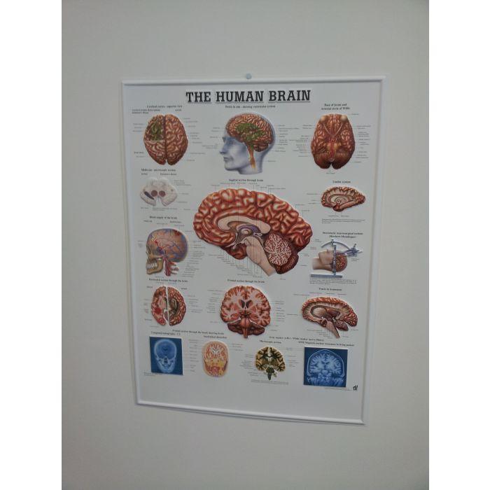 3D Human Brain Poster