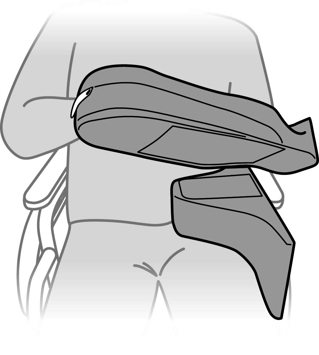 System upper limb positioning wedge block groove and zone