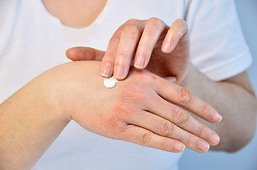 Moisturiser on Dry Hands Can Ease the Pain