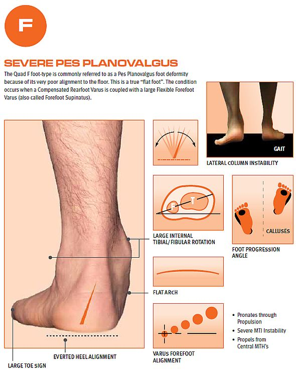 4a045b95f2 Quadrastep F Flat Foot Orthotic Insole :: Sports Supports | Mobility ...