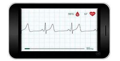 WIWE ECG Monitor