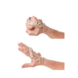 Polycentric Hinged Ulnar Deviation Splint Health And Care