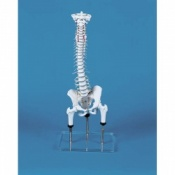 Malposition Vertebral Column Model