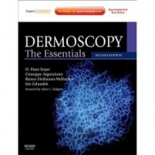 Dermoscopy The Essentials 2nd Edition