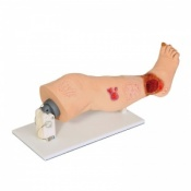 ''Vinnie'' Venous Insufficiency Leg Model