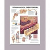 Anatomical Chart for Understanding Osteoporosis