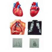 The Heart I Chart Anatomy with Wooden Rods