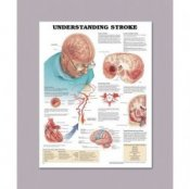 Anatomical Chart for Understanding Stroke