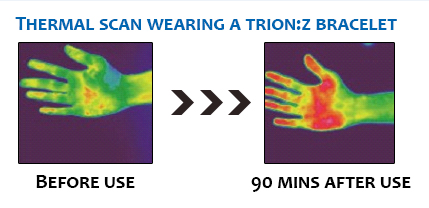 Try And See The Benefits Of Trion Z Sports Supports Mobility
