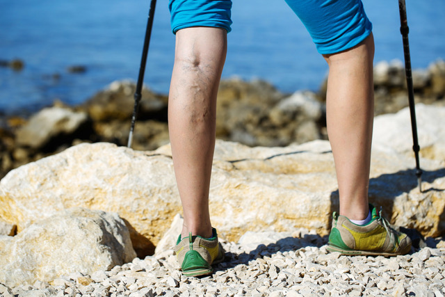 Varicose veins can look unpleasant however aren't usually dangerous
